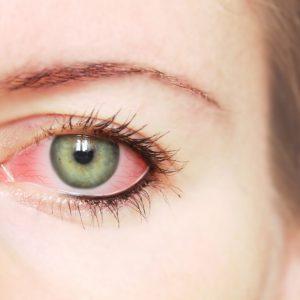 Assim Como Nos Lábios, Herpes Ocular Pode Surgir A Qualquer Momento