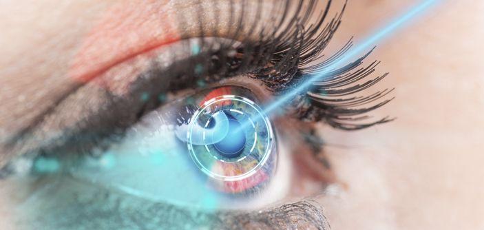 Cirugia A Laser